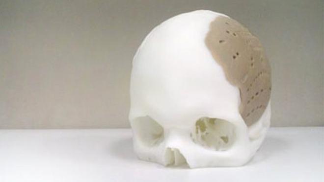 opm-pekk-3d-printed-skull